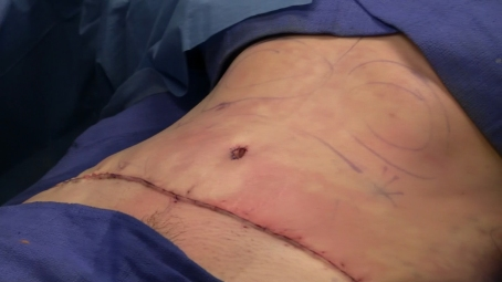 Abdominoplasty_completely_sutured